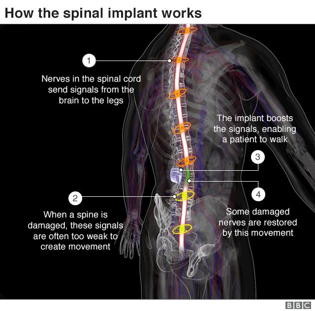 脊髄に機器を埋め込む手術の概要。(1) 脊髄内の神経は脳から脚に信号を送る、(2) 脊椎が損傷すると、脊髄内の神経が送る信号が脚に伝わらなくなるが、(3) 機器が信号を増幅することで脚が動くようになる。また、損傷した神経の回復効果もあるとみられる