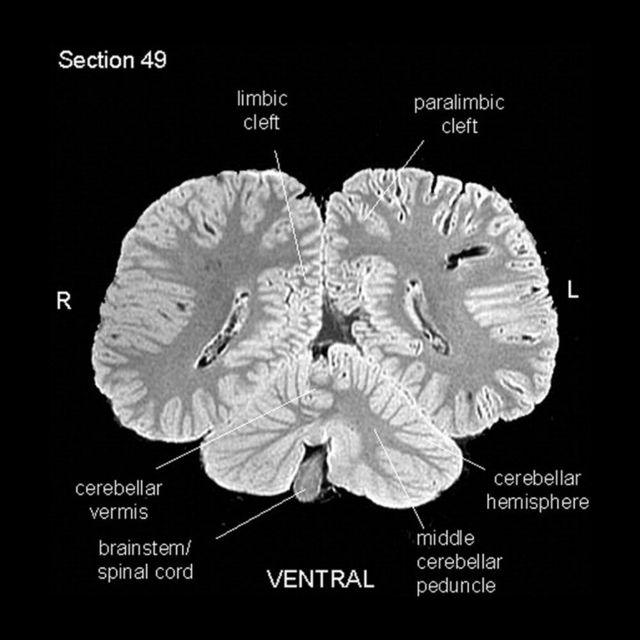 虎鯨腦掃描圖
