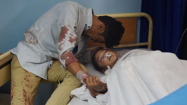 自爆攻撃で負傷し病院で手当を受ける8歳のザハラさん(22日、アフガニスタン・カブール)