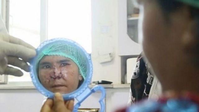 زرقا میگوید از نتیجه جراحی بازسازی صورتش راضی است