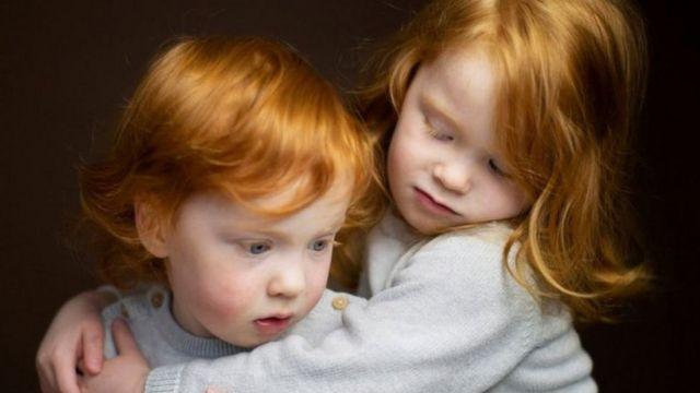ابنتا المصور كيران دودز