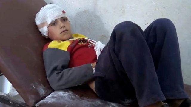 Müxalif Suriya İnqilab Şəbəkəsi media təşkilatı tərəfindən hazırlanan videoda Haas kəndinə hücum nəticəsində xəsarət alan uşaq təsvir olunur. ( Haas, Idlib əyaləti, 26 October 2016 )