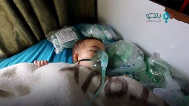 Crianças também foram vítimas de ataque com armas químicas