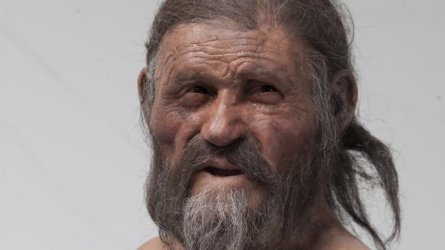 Oetzi the Iceman had a stomach bug, researchers say