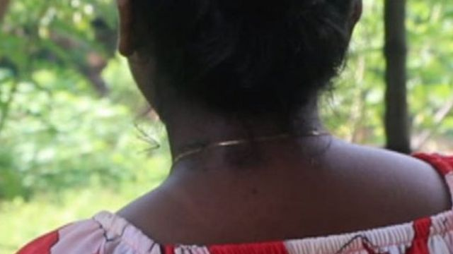 Scars are still visible on Shiroma Pereira's neck and face