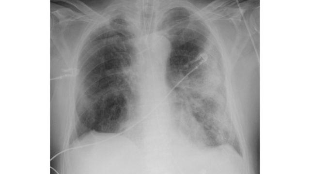 Rayos X de un hombre de 68 años con síntomas severos de covid-19.