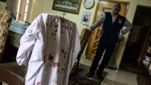 ملابس عليها دماء