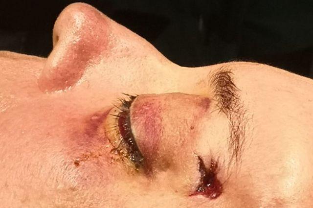 La bala le entró por la sien izquierda y tuvieron que sacarla por el pómulo derecho.