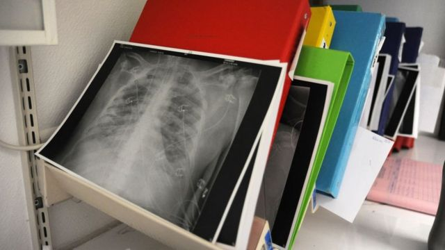 خدمة الإنعاش الطبي في مستشفى جاك كارتييه في ماسي. صورة شعاعية لرئتي مريض مصاب بفيروس كورونا