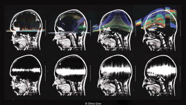 Serie de escaneos cerebrales. Foto: Silvia Grav.