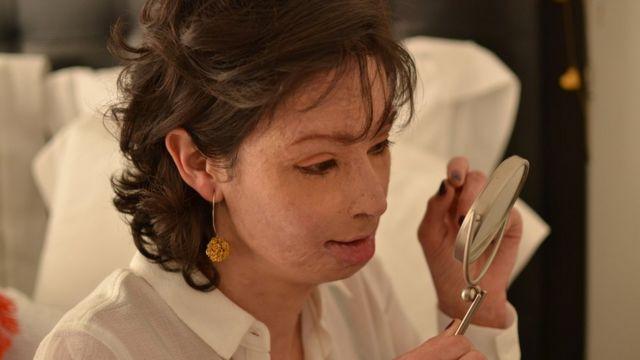 Natalia Ponce de León asegura que le perdió el miedo al espejo tras el ataque.