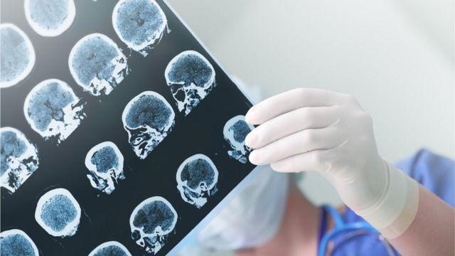radiografia cerebral