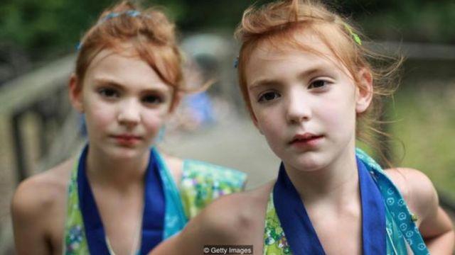 जुड़वां बच्चे