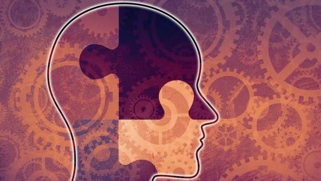 Una ilustración del cerebro y relojes
