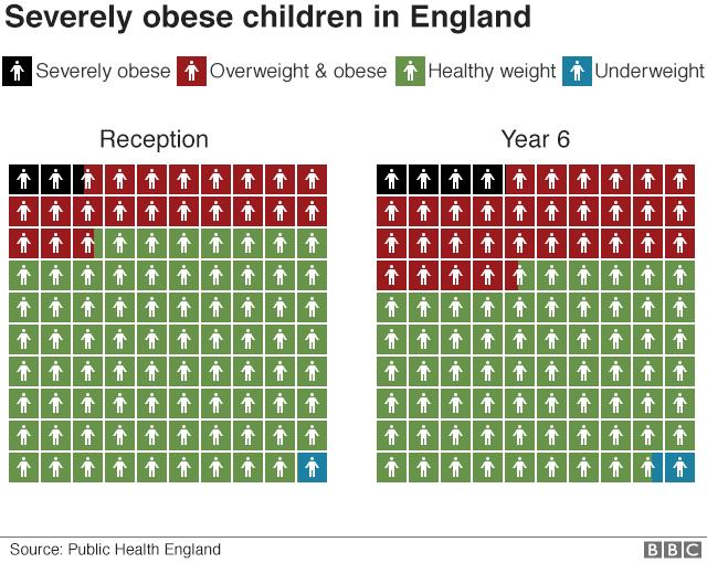 Childhood obesity graphic