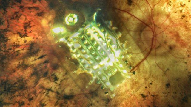 Сетчатка Григория Ульянова с имплантом Argus II
