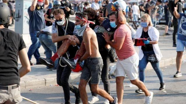 یکی از معترضان مجروح شده