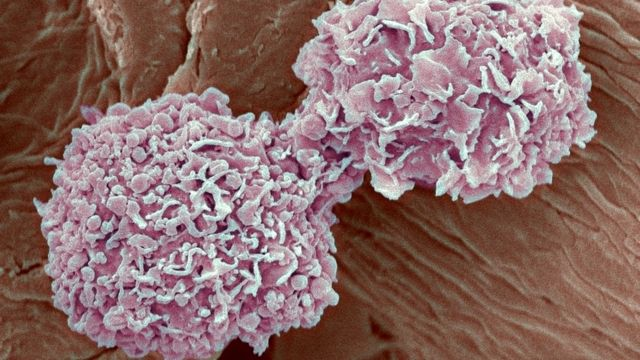 Breast cancer drug increases survival