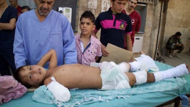 Hani, aged eight, called for his father as he left hospital