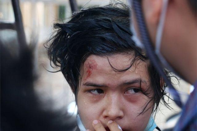 内比都一名被警察高压水枪击伤的示威者