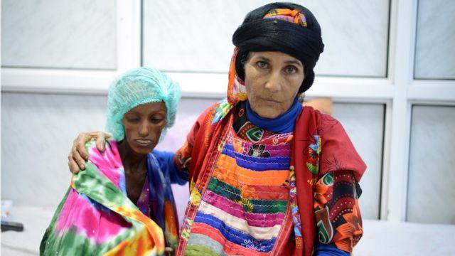 فتاة يمنية تعالج من سوء التغذية