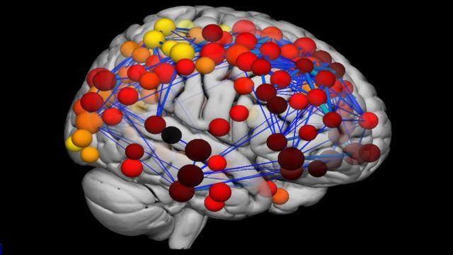 Raio-X cerebral