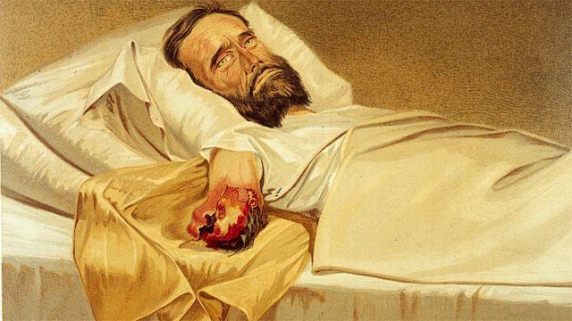 Un soldado de la Guerra Civil estadounidense con gangrena hospitalaria en el brazo (1861-65).