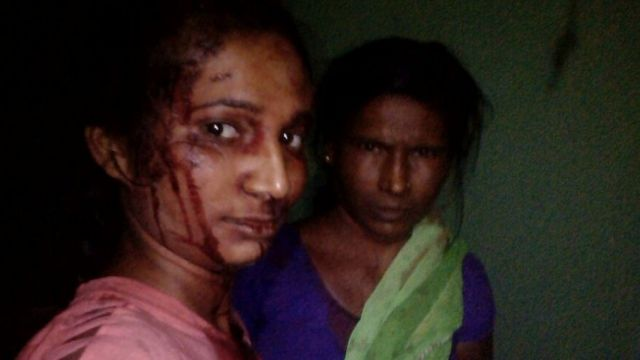 Rupali Meshram and her mother soon after the attack