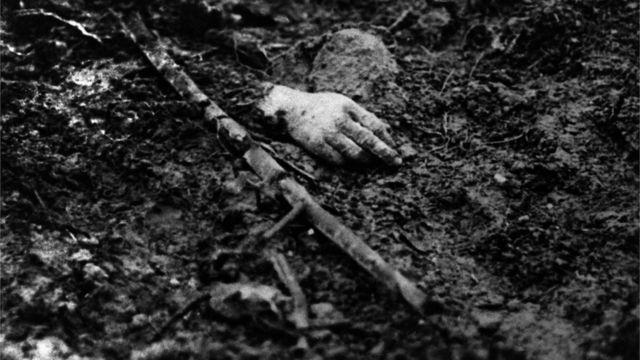 صورة أرشيفية ليد جندي قتل في الحرب العالمية الأولى