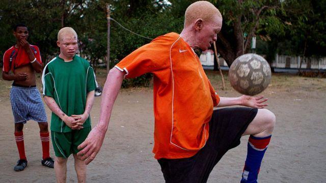 Tanzanie, une équipe de personnes atteintes d'albinisme jouent pour sensibiliser contre la discrimination des personnes comme elles.