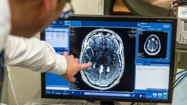 صورة مسح ضوئي للمخ على جهاز كمبيوتر