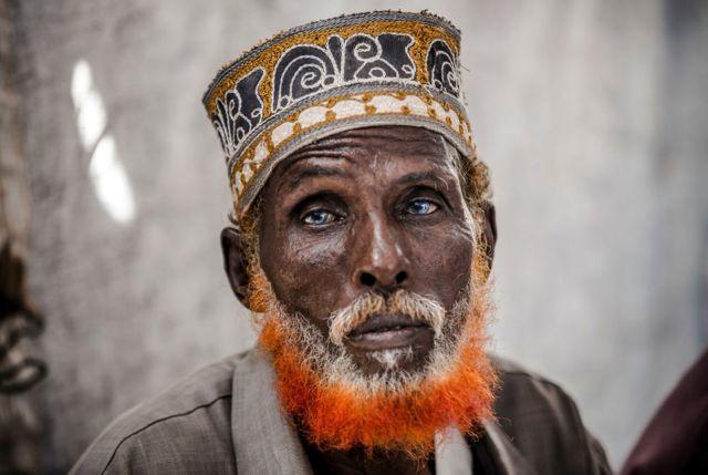 عمر البالغ من العمر 74 عاما كان من بين الأشخاص الذين لجؤوا إلى أحد مخيمات الأمم المتحدة بعد أن فقد منزله في وسط الصومال بسبب الفيضانات التي أضرت بآلاف الأشخاص في شرقي إفريقيا.