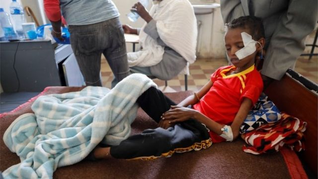 Fourteen-year-old Adan Muez is helped to sit up in his bed at Adigrat General Hospital in the town of Adigrat, Tigray region, Ethiopia, March 18, 2021