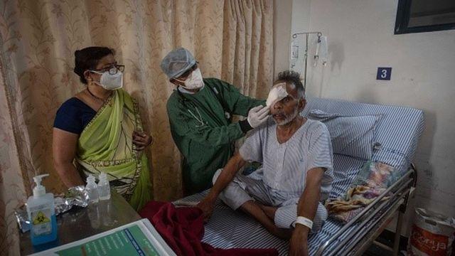Paciente com mucormicose é atendido na Índia