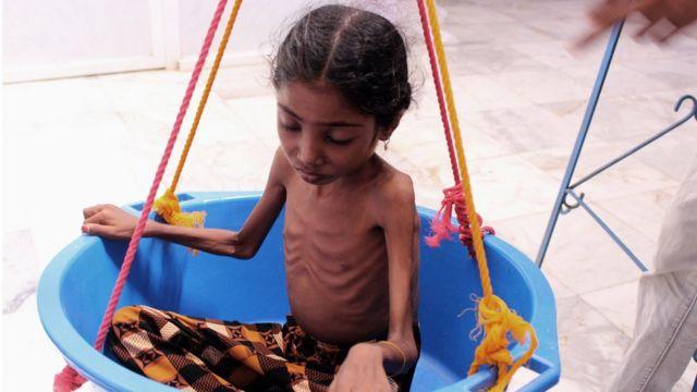 صورة أرشيفية لطفلة أخرى من محافظة الحجة اليمنية.