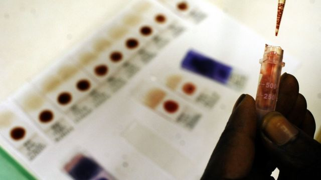 Blood samples for malaria are tested in Ghana