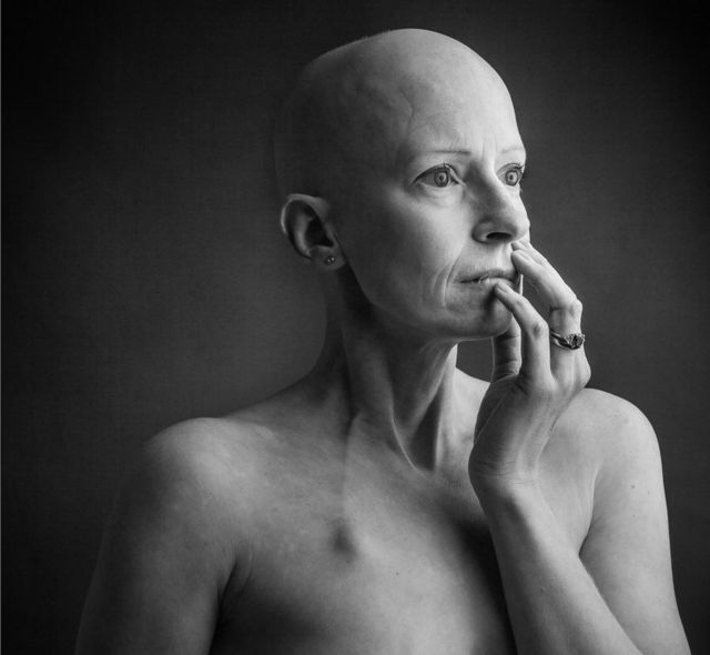 The breast cancer surgeon who got breast cancer