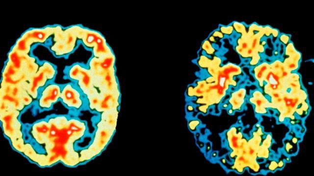 Недостаток сна может способствовать развитию таких заболеваний, как болезнь Альцгеймера