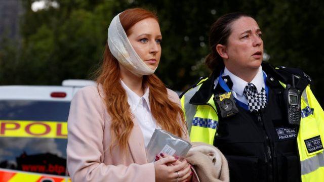یکی از مسافرانی که صورتش آتش گرفته و سرپایی درمان شده است