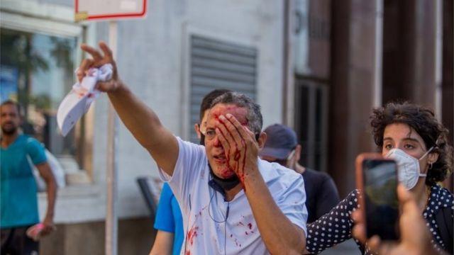 Um homem foi ferido no olho esquerdo durante protesto em Recife