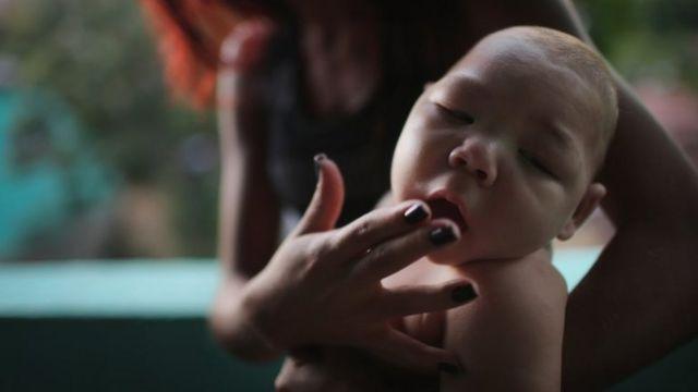 ジカウイルス感染と小頭症の赤ちゃん誕生の因果関係が疑われている