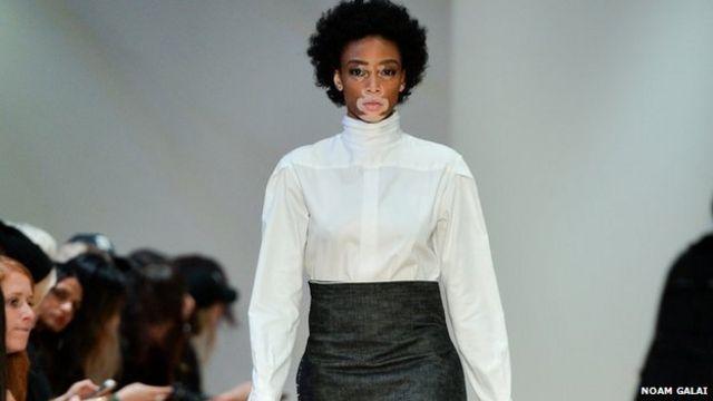 fashion model Winnie Harlow