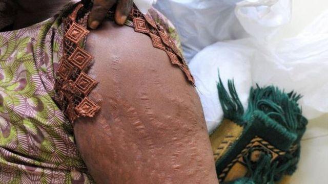 Une femme montre des cicatrices sur son bras dans un hôpital de Dakar causées par l'éclaircissement de la peau.