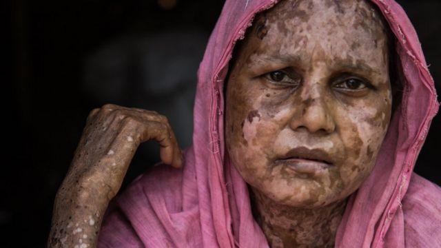 সারা বেগম, ৪০, বর্মী বাহিনীর অগ্নিসংযোগের শিকার