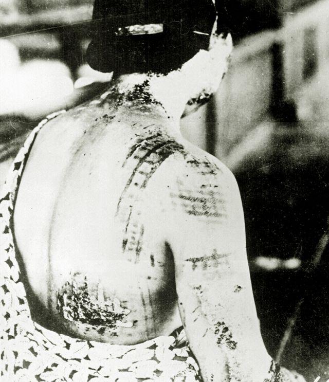 হিরোশিমায় বোমায় পুড়ে যাওয়া এক নারী