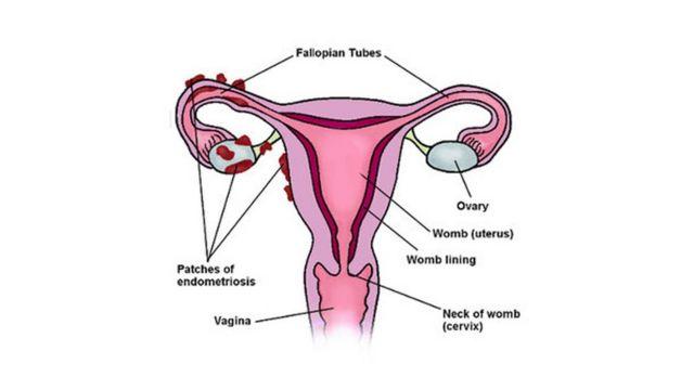 يوضح هذا الشكل كيف يحدث داء بطانة الرحم المهاجرة حول قناة فالوب والمبيض