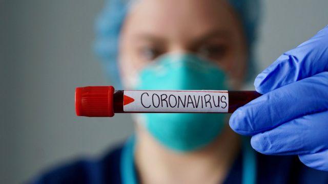 Médico com máscara segurando tubo de exame de coronavírus