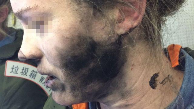 обличя жінки після вибуху навушників