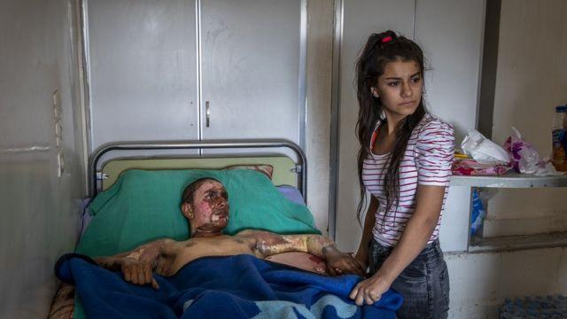 Ahmed Ibrahim, de 18 años y miembro de las Fuerzas Democráticas de Siria, gravemente quemado, recibe la visita de su novia en un hospital en al Hasakah (Siria), el 20 de octubre de 2019.