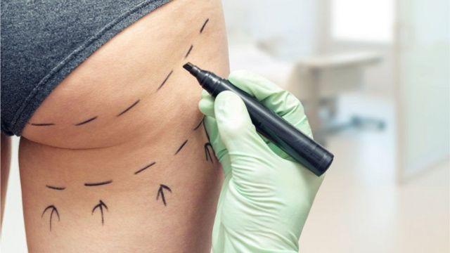 Cirujano trazando líneas punteadas en el trasero de una persona.